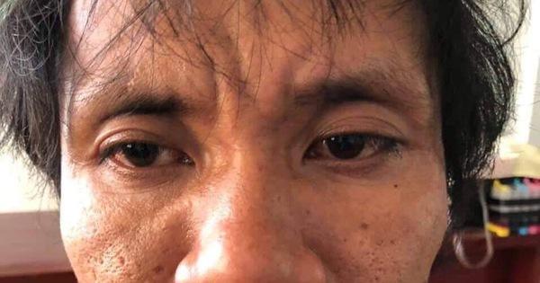 Bắt nghi phạm hiếp dâm bé gái 9 tuổi bán vé số ở Phú Quốc