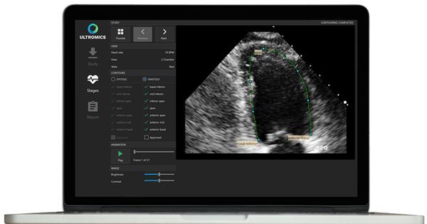 FDA thông qua 2 phần mềm AI giúp chẩn đoán bệnh tim, ung thư vú