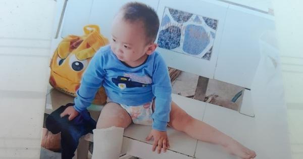 Bé trai 3 tuổi gãy chân nghi bị bạo hành tại điểm giữ trẻ