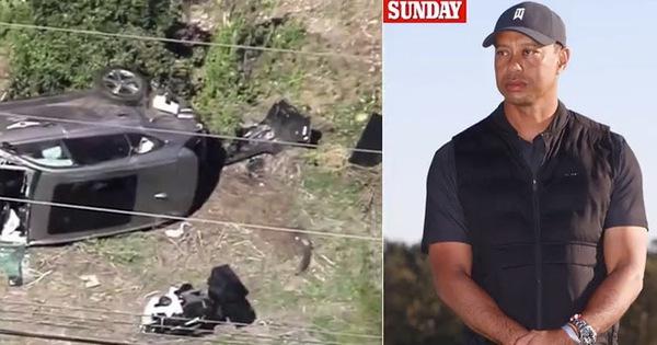 Tai nạn xe hơi nghiêm trọng, Tiger Woods bị dập nát cả hai cẳng chân
