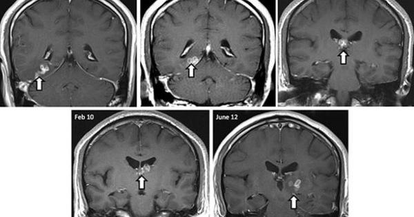 Phát hiện sán xơ mít sống trong não người