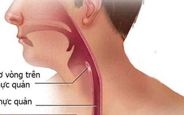 Nuốt khó là triệu chứng thường gặp của ung thư thực quản