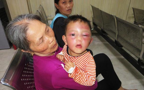 Bé 2 tuổi nghi bị cha dượng tâm thần đánh tím mặt