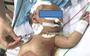 Lần đầu tiên tại Việt Nam: Cắt khối u gan hiếm gặp cho bé trai 13 ngày tuổi